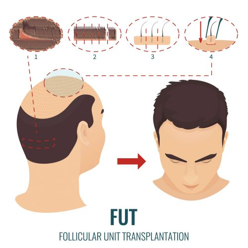 Hair Follicles Transplanted Per Session